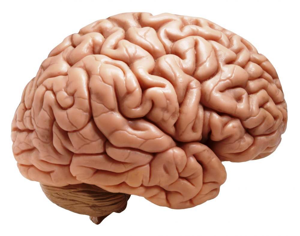 Afbeeldingsresultaat voor herseninfarct